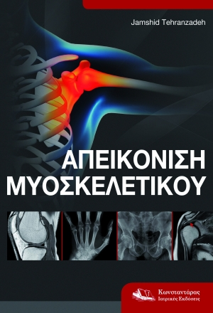 Απεικόνιση μυοσκελετικού