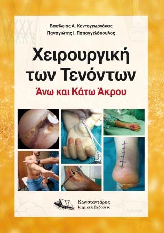 Χειρουργική των τενόντων