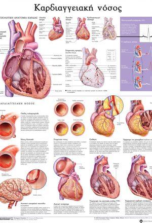 Ανατομικός χάρτης: καρδιαγγειακή νόσος