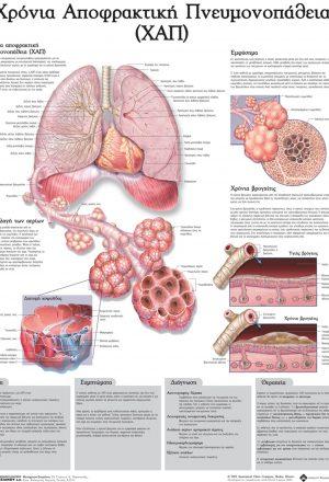 Ανατομικός χάρτης: Χρόνια αποφρακτική πνευμονοπάθεια