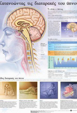 Ανατομικός χάρτης: κατανοώντας τις διαταραχές του ύπνου