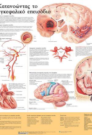 Ανατομικός χάρτης: κατανοώντας το εγκεφαλικό επεισόδιο