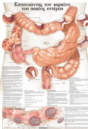 Ανατομικός χάρτης: κατανοώντας τον καρκίνο του παχέος εντέρου.