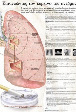 Ανατομικός χάρτης: κατανοώντας τον καρκίνο του πνεύμονα